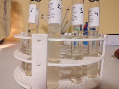 Bacterial cultures: 1. Control, 2. Culterelle, 3. Nature's Way, 4. Breast milk.